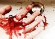 mano con sangre